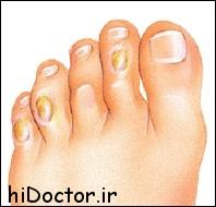 میخچه در پا و انگشتان پا – درمان