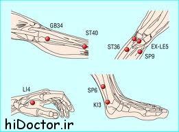 آیا درد زانو با طب سوزانی قابل درمان است ؟