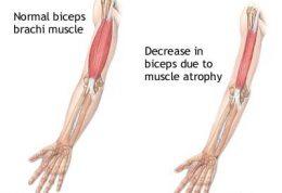 علائم دیستروفی عضلانی و راه های تشخیصی