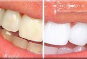 خود درمانی برای سفید کردن دندان موجب خرابی مینای دندا ن میشود