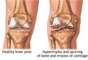 همزمان با بالا رفتن سن استخوانها چه تغییری میکنند؟