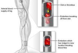 چه زمانی شریانها دچار آمبولی می شود؟