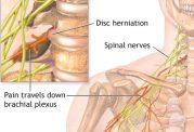 چه عواملی باعث می شود که گردن درد بگیریم؟