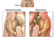 درد های ناشی از دررفتگی مفاصل