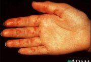 تشخیص و درمان واسکولیت آلرژیک