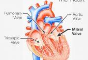 روزه گرفتن برای افرادی که افتادگی دریچه ی قلب دارند
