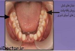 در دهان کودکان نخستین دندان آسیای بزرگ چقدر مهم است؟