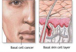 درباره بیماری پوستی کارسینوم سلول بازال چقدر میدانید