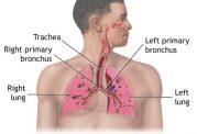 ضرورت دانستن درباره بیماری فیبروز کیستیک
