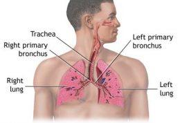 سندرم زجر تنفسی حاد چه نوع بیماری است؟