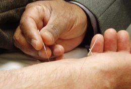 طب سوزنی ، درمان، مزایا، اثرات جانبی و درد