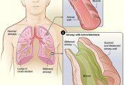 راه تشخیص برونشکتازی و درمان