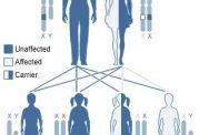 درباره بیماری  سندرم  Aarskog چه میدانید