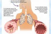 علائم و نشانه های آسم و راه های تشخیصی