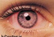 راه حل های طب سنتی برای بیماری های چشم