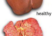 عوامل خطر و پیشگیری از سرطان کبد
