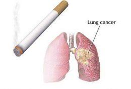 بیماری سرطان ریه راباهم مرور میکنیم