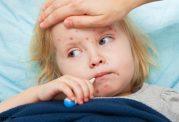 آیا سرخک درمان طبیعی دارد؟