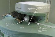 تصویربرداری رزونانس مغناطیسی از مغز و نخاع چطوری است