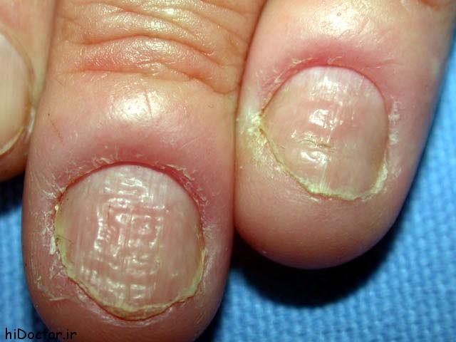 عفونت پارونیشیای – حاد – علائم و درمان