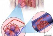 آمبولی ریوی - تشخیص، علائم و درمان
