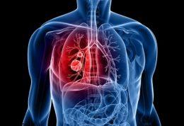 بیماری آبسه ریه را مرور میکنیم
