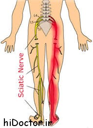 درمان عصب سیاتیک با طب سنتی