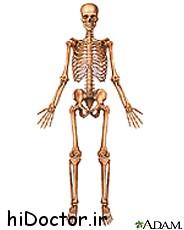 استخوان چرا دچار عفونت میشود و چه کسانی مبتلا می شوند