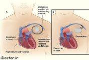 ضربان ساز قلب در چه مواقعی گذاشته میشود؟