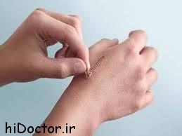 پیشنهادات طب سنتی درباره درمان زخم ها