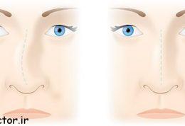 جراحی بینی چه عارضه هایی بر جای میگذارد؟