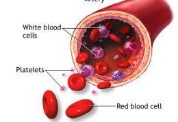 کم خونی فانکونی چه نوع کم خونی است؟