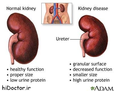 نفروپاتی دیابتی چگونه به کلیه ها آسیب می زند