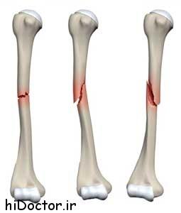 تنه استخوان بازوی شکسته  را چگونه در منزل درمان کنیم؟