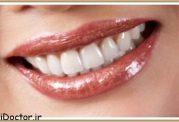 هر آنچه درمورد لامینیت دندان باید بدانید