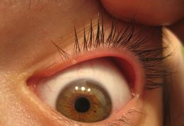 دانسته هایی درباره  بیماری بلفاریت