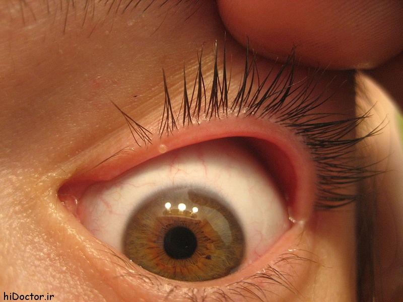 درمان جوش داخل پلک چشم