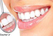 در جلوگیری از خرابی دندان از روغن نارگیل استفاده کنید