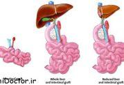 در بيماران مبتلا به سندرم روده كوتاه اصول غذا خوردن چگونه است؟