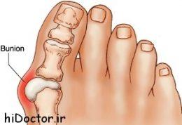 چه میدانید درباره  برجستگی غیرمعمول مفصل شست پا