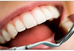 این غذا ها سلامت دندان شما را تضمین می کنند