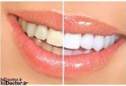اگر دندان هایی سلام می خواهید ، این غذا ها را نخورید