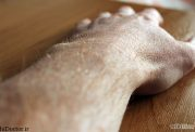 برای درد دست چه ورزش هایی موثر است؟
