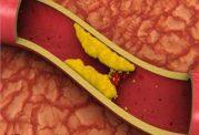 چربی خون را با این رژیم غذایی کاهش دهید