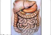 تاثیرگذاری باکتری ها در مبتلا شدن به سرطان روده بزرگ