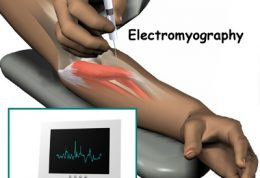 دانستنیهای کامل درارتباط با  الکترومیوگرافی