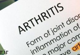 بیماران مبتلا به آرتروز با شیوه جدید درمان می شوند