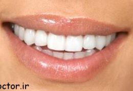 درمان ارتودنسی انجام ندادن دندان نیش کشیده شده چطوری ممکن است؟