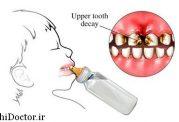 خراب شدن دندان کودک با شیر دادن شبانه به آن