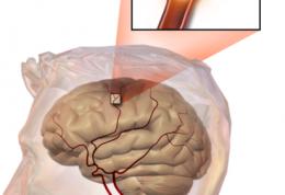 مراقب این نشانه ها در ضربه سر وارد شده در ورزش باشید